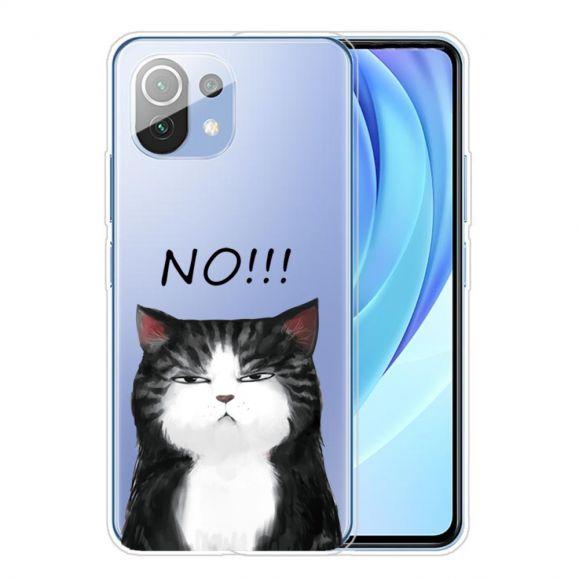 Coque Xiaomi Mi 11 No!!! Chat