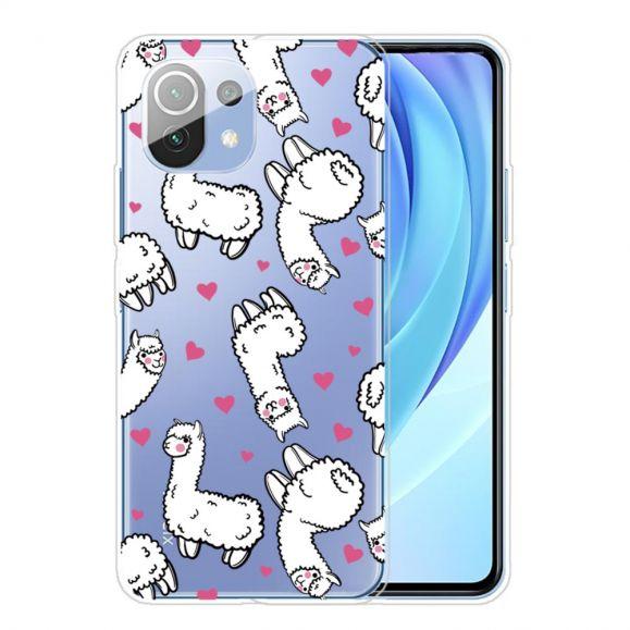 Coque Xiaomi Mi 11 Alpaga